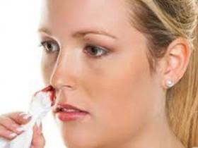 Кровь из носа при беременности: что делать?