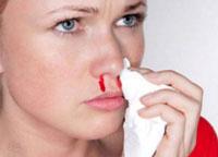 Кровь из  носа при беременности