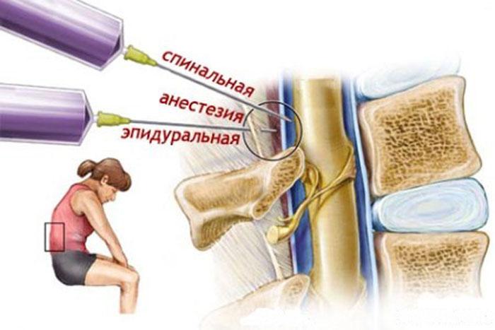 Эпидуриальная анестезия