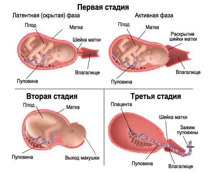 Три стадии родов