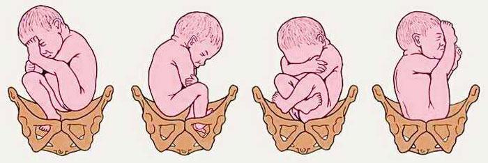 Идеальное положение для новорожденного