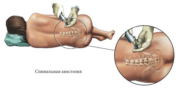 Спинальная анестезия