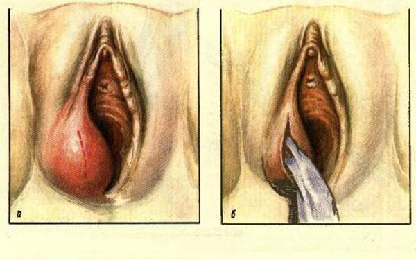 Гематома во влагалище
