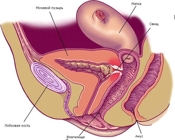Свищ в мочеполовой системе после родов