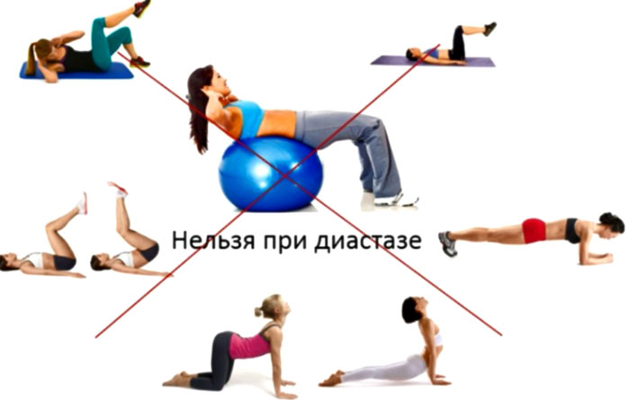 Упражнения нельзя при диастазе