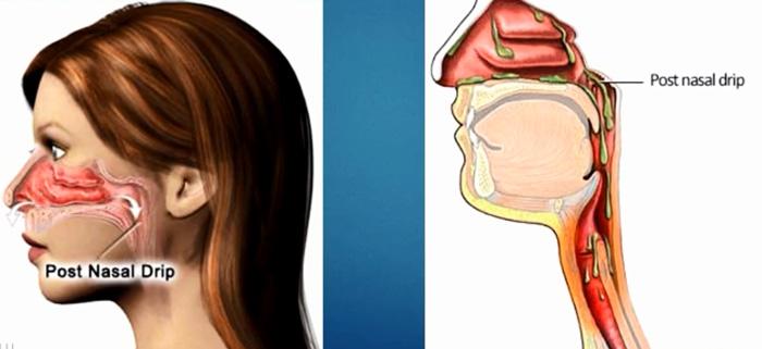 Насморк - отек слизистой носа