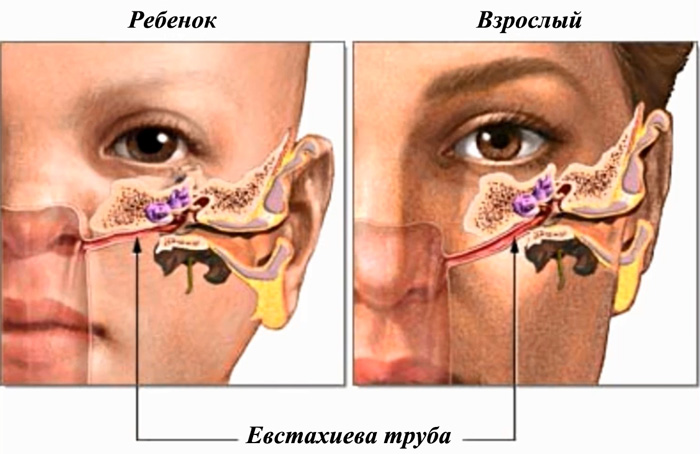 Евстахиева труба у ребенка и взрослого