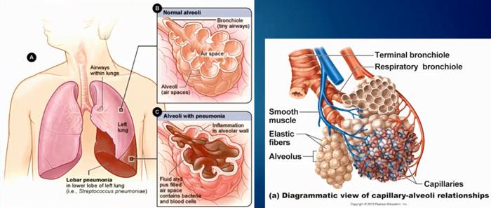 Пневмония у взрослого и ребенка