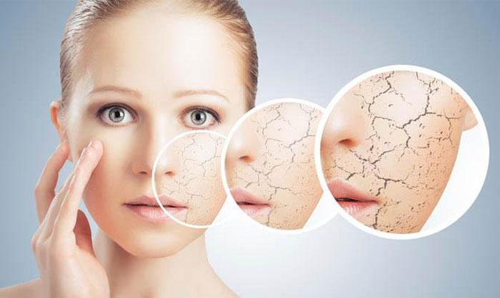 Трещинки на коже лица