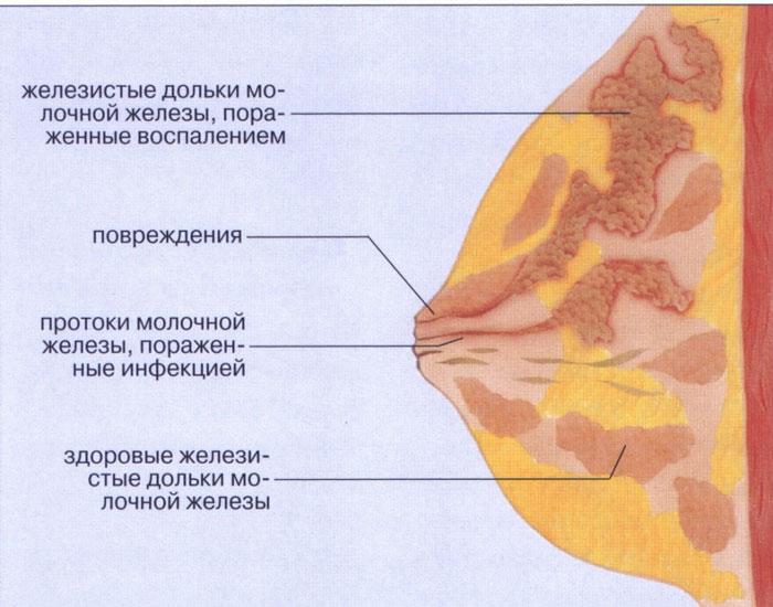 Женская молочная железа
