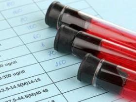 Анализ на эритроциты в крови и моче