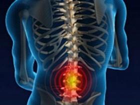 Защемление седалищного нерва во время беременности