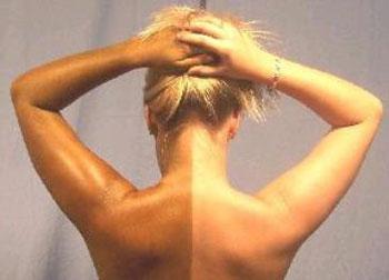 Солнечный загар на спине