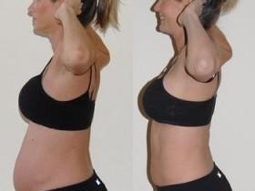 Как похудеть после родов во время кормления грудью?