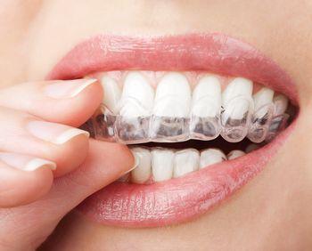 Профилактика болезней зубов