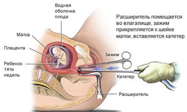 Аборт выскабливанием