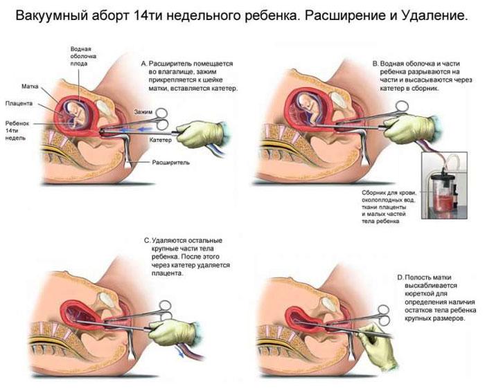 Вакуум аборт