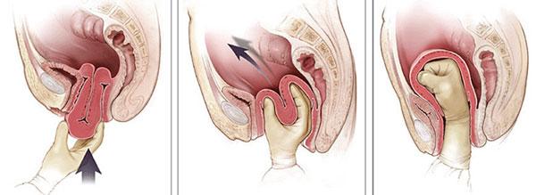 Выворот матки после родов