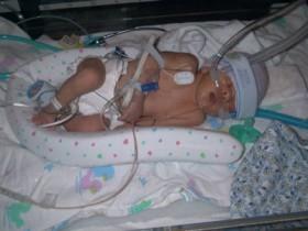 Асфиксия у новорожденных