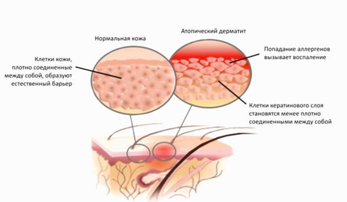 Нарушенный роговой слой кожи - причина атопического дерматита