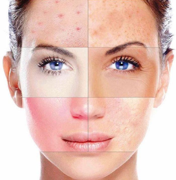 Нездоровая кожа лица